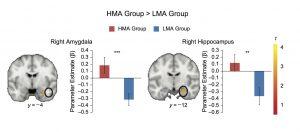 Math Anxiety Brain fMRI