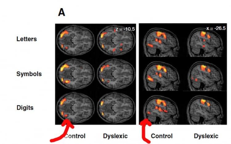 visual-dyslexia